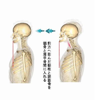 頚椎の矯正